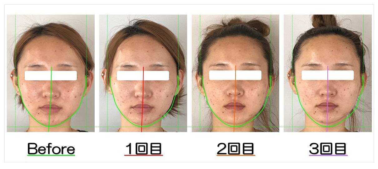 Before After写真   滋賀守山市の小顔歪み矯正 プリュムレーヴ   あごの歪みと頬骨の出っ張りが改善して左右対称の輪郭へ
