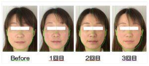 Before After写真 | 滋賀守山市の小顔歪み矯正 プリュムレーヴ | 頬骨の上がりとたるみ改善で、輪郭が引締まり左右対称に