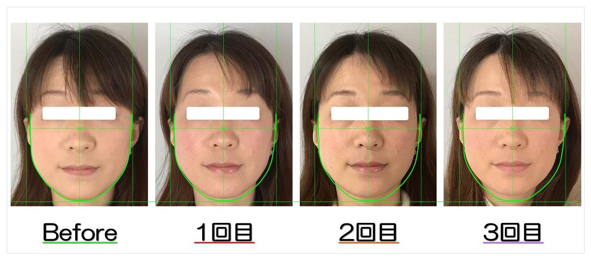 Before After写真   滋賀守山市の小顔歪み矯正 プリュムレーヴ   頬骨の上がりとたるみ改善で、輪郭が引締まり左右対称に