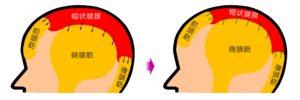帽状腱膜の弾力性を回復によりたるみ・ほうれい線・シワなどの改善! 小顔矯正 プリュムレーヴ