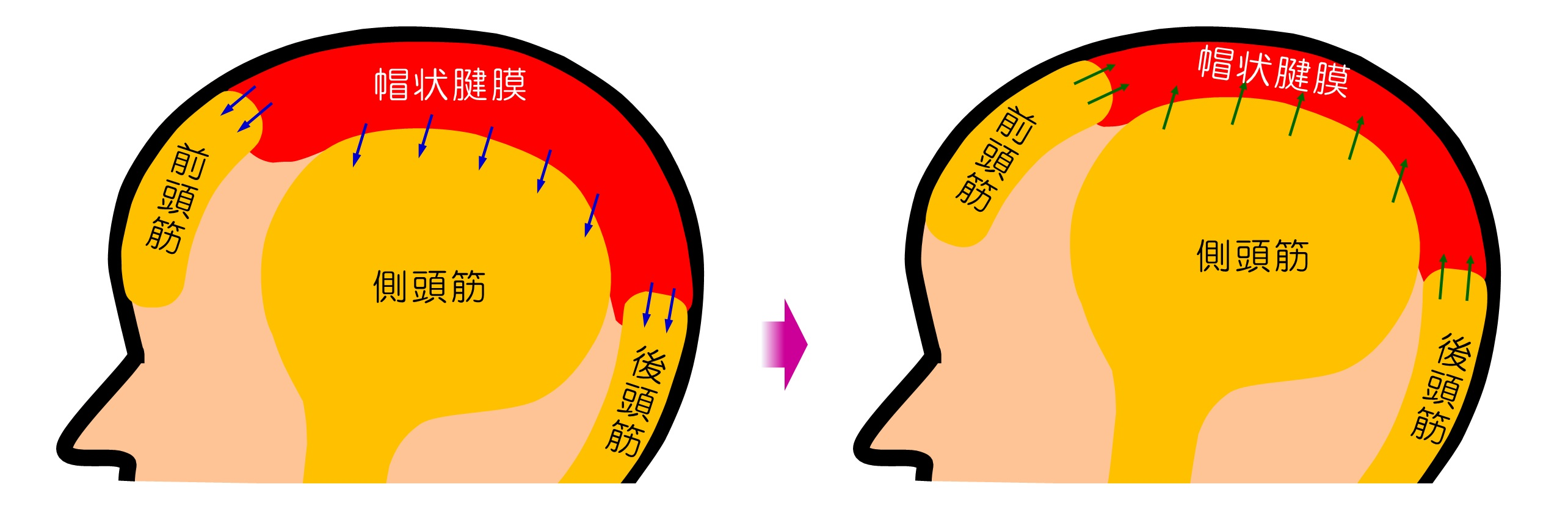 帽状腱膜の弾力性の回復によりたるみ・ほうれい線・シワなどを改善させるヘッドマッサージ! 小顔矯正 プリュムレーヴ