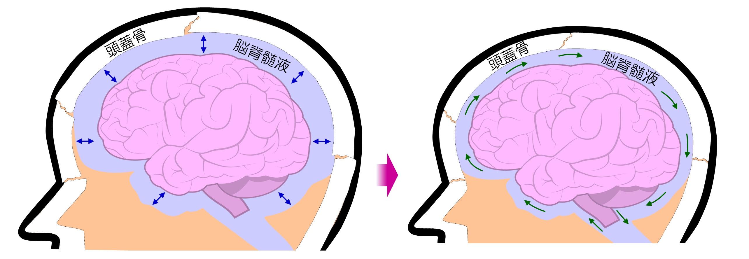脳脊髄液の循環の促進により頭痛・首肩コリ・目のかすみなどを改善させるヘッドマッサージ! 小顔矯正 プリュムレーヴ