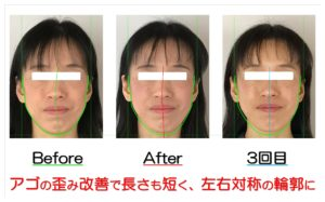 滋賀県守山市 小顔歪み矯正 | アゴの歪み改善で長さも短く、左右対称の輪郭に