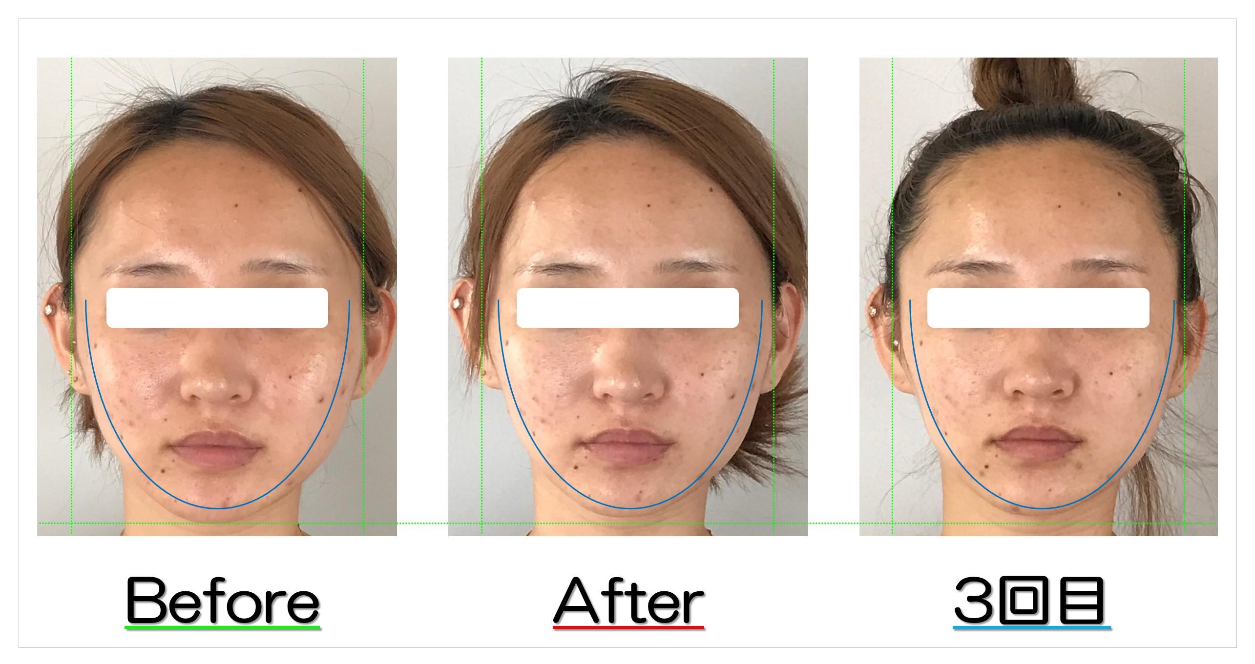 頬の広がりと左右差が改善! | 滋賀守山市の小顔歪み矯正