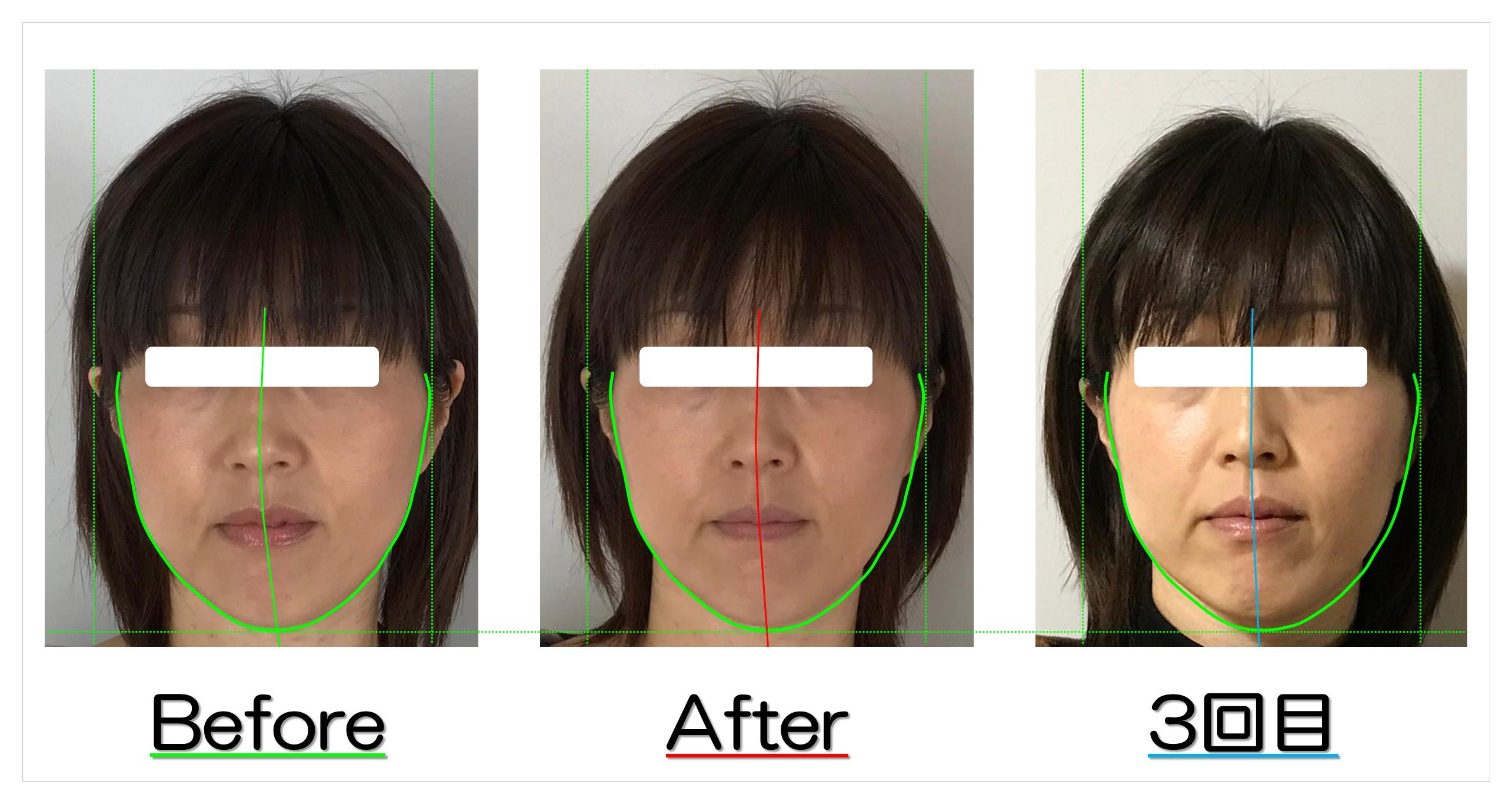 長年の顔の歪みと長さが改善! | 滋賀守山市の小顔歪み矯正