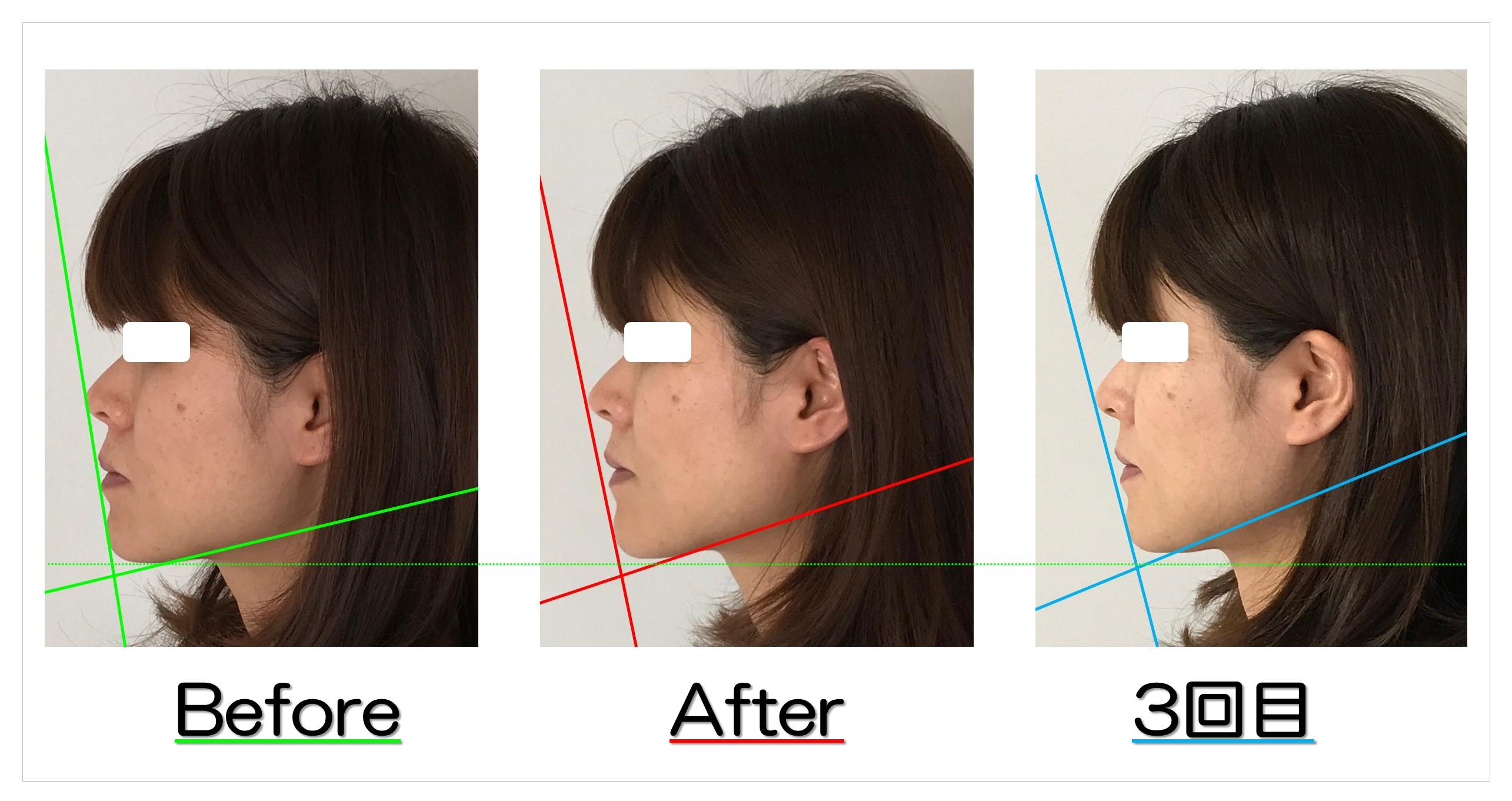 整形も考えたお顔の悩みが改善! | 滋賀守山市の小顔歪み矯正