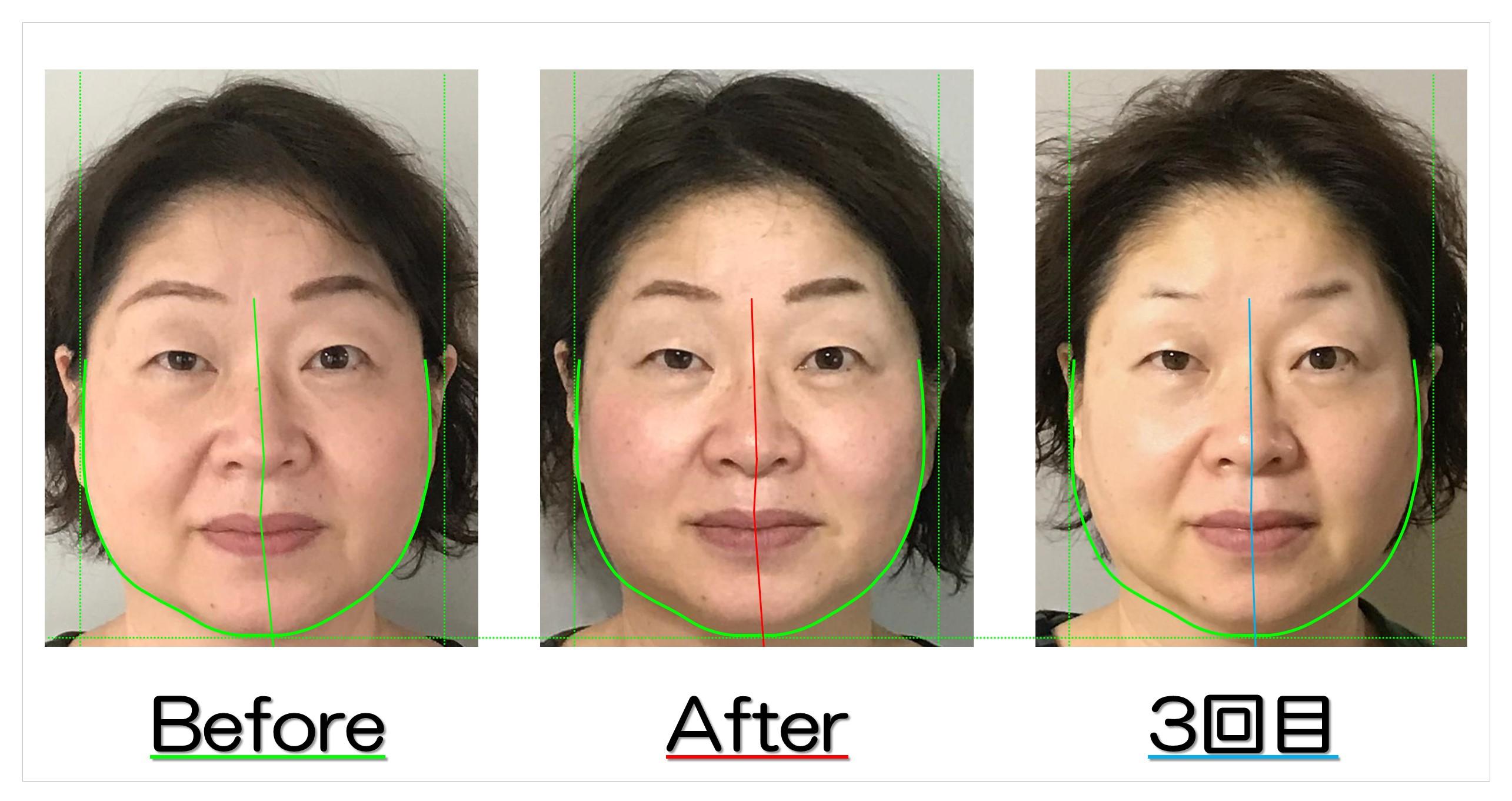 頬のたるみとエラ張りが改善! | 滋賀守山市の小顔歪み矯正