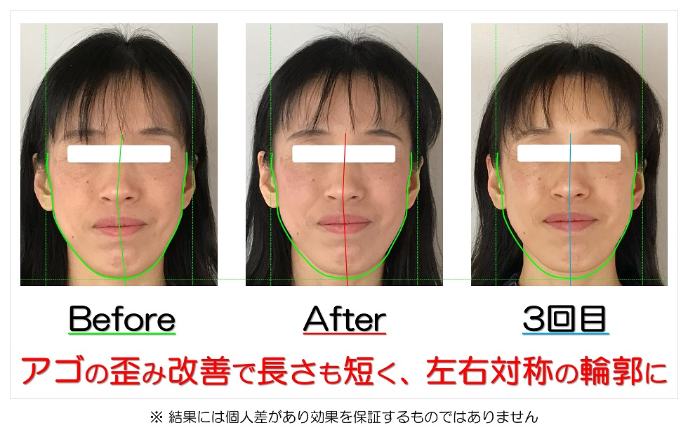 滋賀県守山市 小顔歪み矯正 アゴの歪み改善で長さも短く、左右対称の輪郭に
