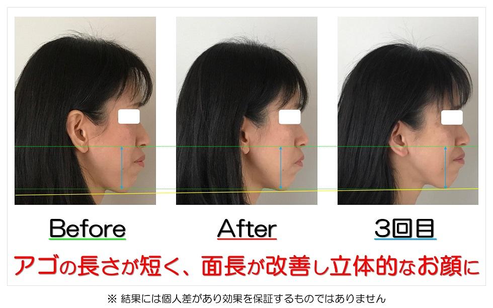 滋賀県守山市 小顔歪み矯正 アゴの長さが短く、面長が改善し立体的なお顔に