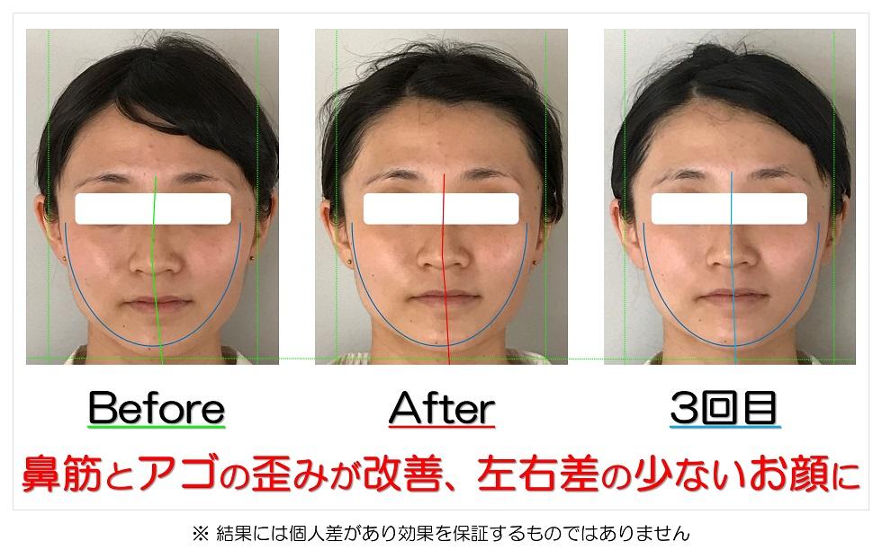 滋賀県守山市 小顔歪み矯正 鼻筋とアゴの歪みが改善、左右差の少ないお顔に