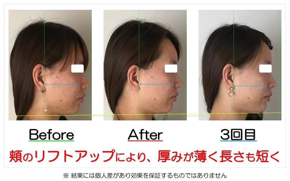 滋賀県守山市 小顔歪み矯正 頬のリフトアップにより、厚みが薄く長さも短く