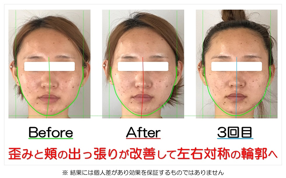 滋賀県守山市 小顔歪み矯正 歪みと頬の出っ張りが改善して左右対称の輪郭へ
