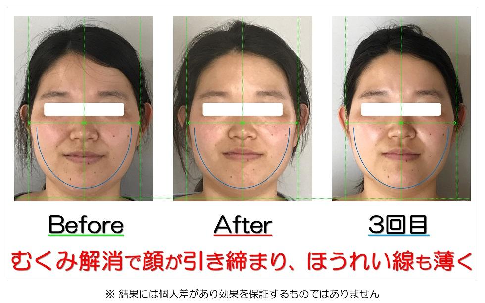 滋賀県守山市 小顔歪み矯正 むくみ解消で顔が引き締まり、ほうれい線も薄く