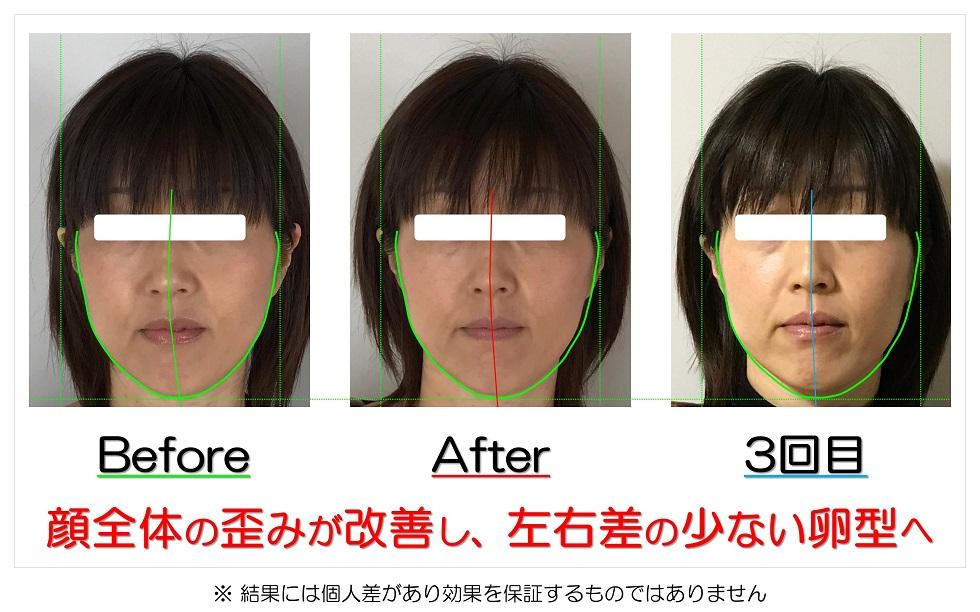 滋賀県守山市 小顔歪み矯正 顔全体の歪みが改善し、左右差の少ない卵型へ