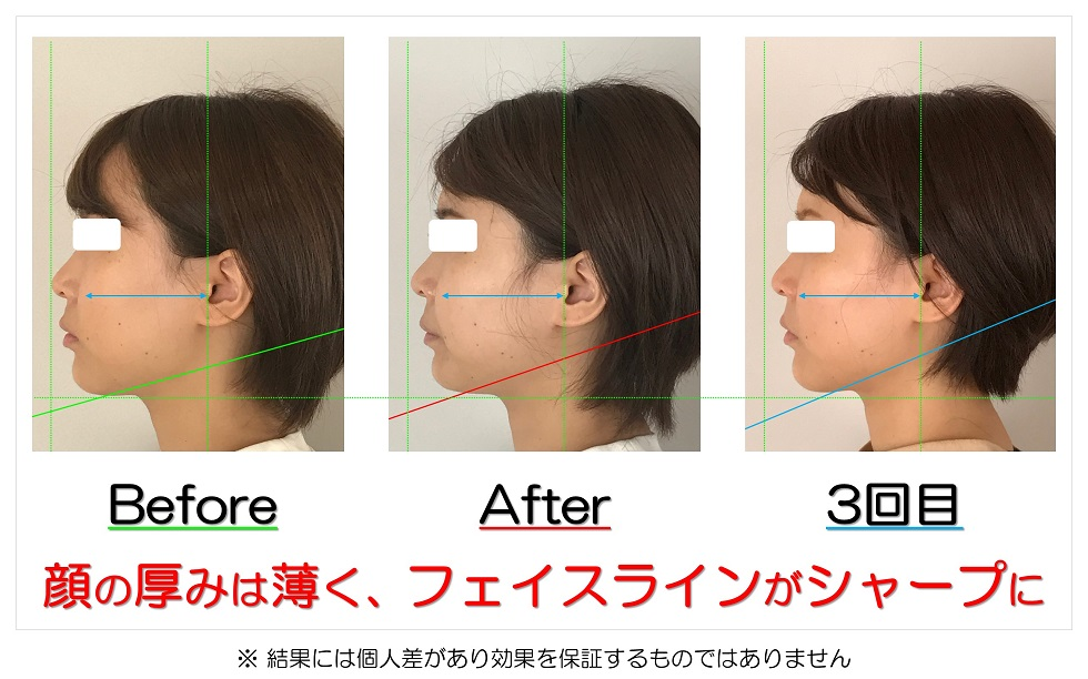 滋賀県守山市 小顔歪み矯正 顔の厚みは薄く、フェイスラインがシャープに