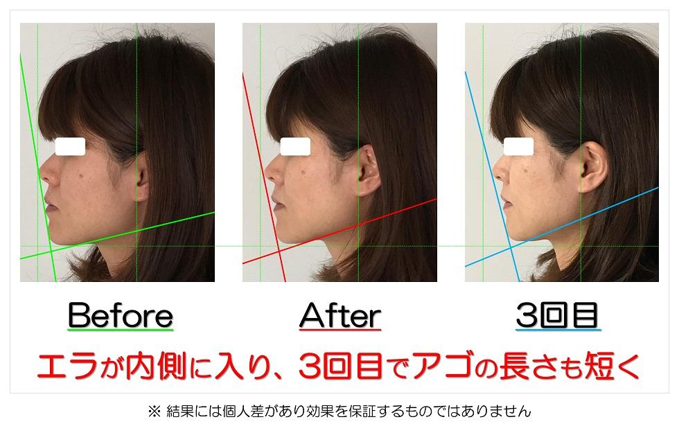 滋賀県守山市 小顔歪み矯正 エラが内側に入り、3回目でアゴの長さも短く