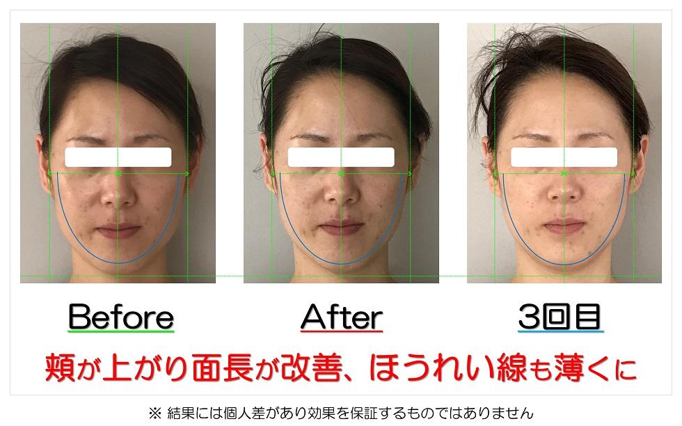滋賀県守山市 小顔歪み矯正 頬が上がり面長が改善、ほうれい線も薄くに