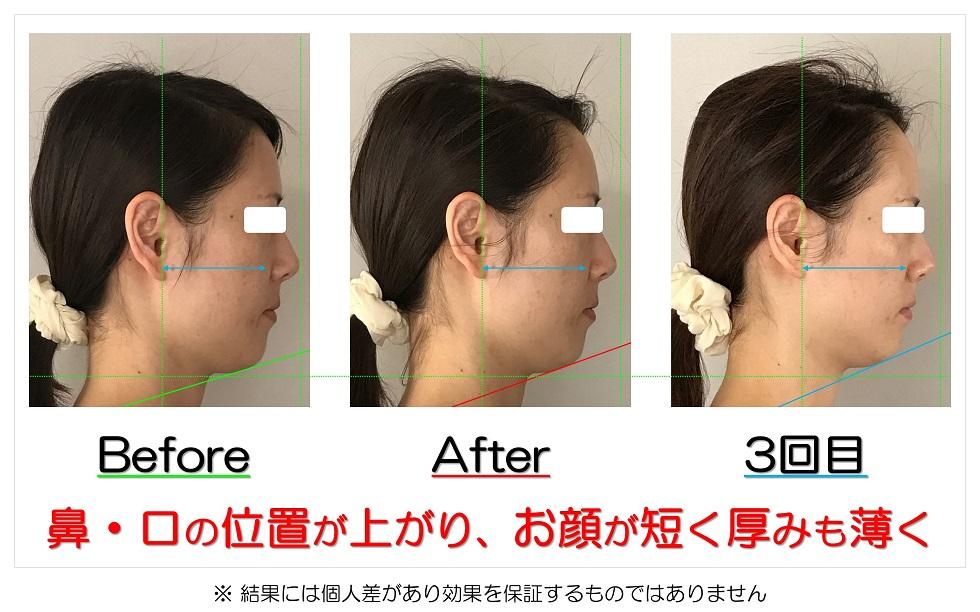 滋賀県守山市 小顔歪み矯正 鼻・口の位置が上がり、お顔が短く厚みも薄く