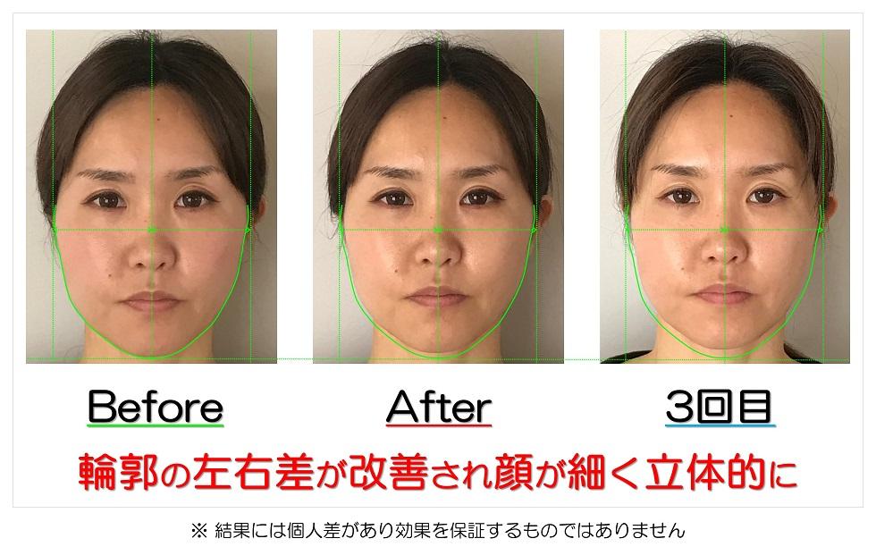 滋賀県守山市 小顔歪み矯正 輪郭の左右差が改善され顔が細く立体的に