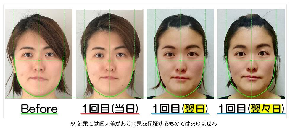 Before After写真 | 滋賀守山市の小顔矯正エステ プリュムレーヴ | 翌日・翌々日にも驚きの効果を実現し、理想の小顔美人に