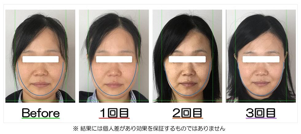 Before After写真 | 滋賀守山市の小顔矯正エステ プリュムレーヴ | むくみの解消で頬がスッキリ、あごがシャープな輪郭に