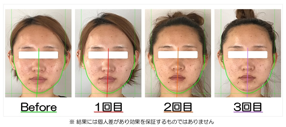 Before After写真 | 滋賀守山市の小顔矯正エステ プリュムレーヴ | あごの歪みと頬骨の出っ張りが改善して左右対称の輪郭へ