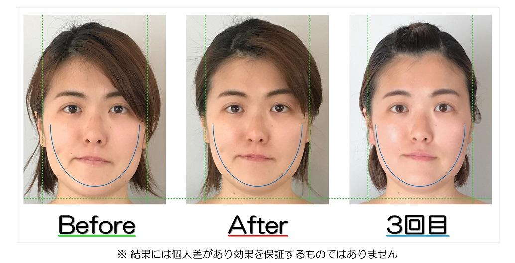 輪郭の左右差の改善が視覚的にも実感できるビフォーアフターの比較写真のサービス付き | 滋賀県守山市の小顔矯正エステ プリュムレーヴ