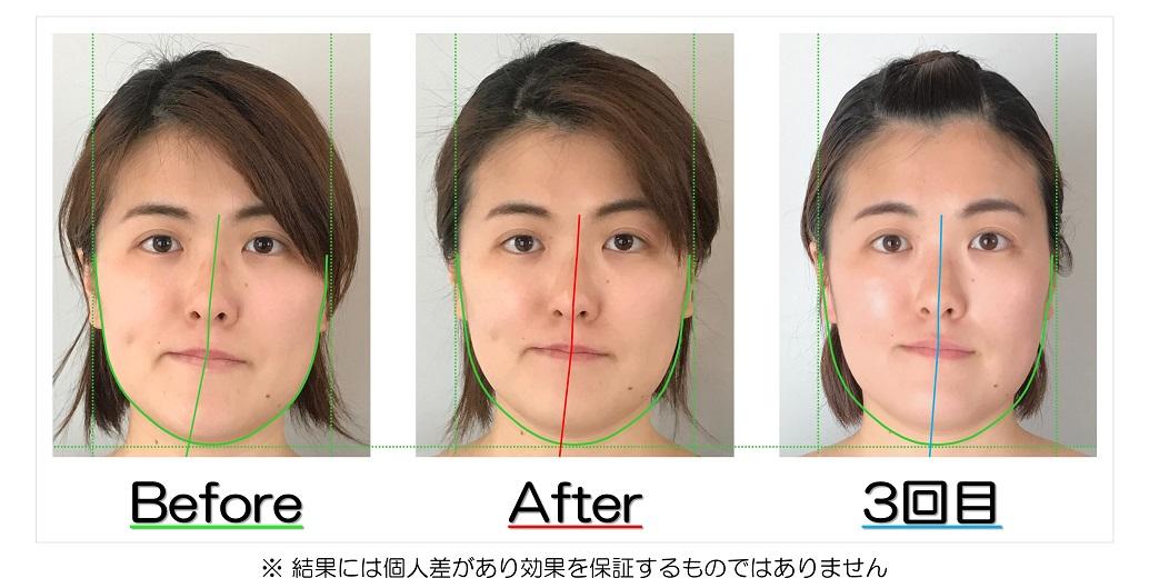 アゴや鼻の歪みの改善が視覚的にも実感できるビフォーアフターの比較写真のサービス付き | 滋賀県守山市の小顔矯正エステ プリュムレーヴ