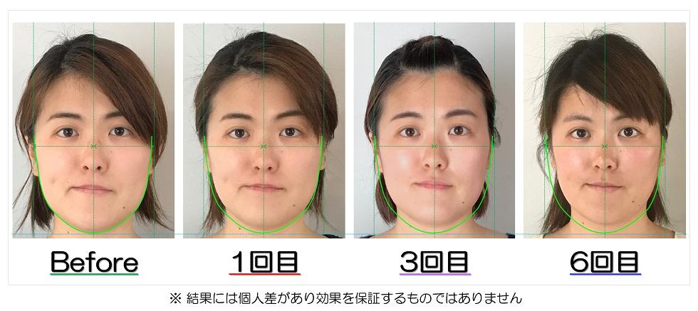Before After写真 | 滋賀守山市の小顔矯正エステ プリュムレーヴ | 輪郭の左右差が改善、たるみも解消し目はパッチリ大きく