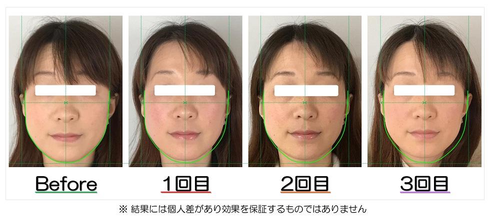 Before After写真 | 滋賀守山市の小顔矯正エステ プリュムレーヴ | 頬骨の上がりとたるみ改善で、輪郭が引締まり左右対称に