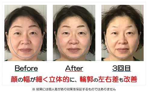 顔の幅が細く立体的に、輪郭の左右差も改善