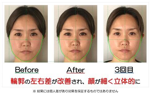 輪郭の左右差が改善され顔が細く立体的に