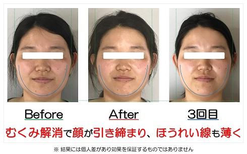 むくみ解消で顔が引き締まり、ほうれい線も薄く