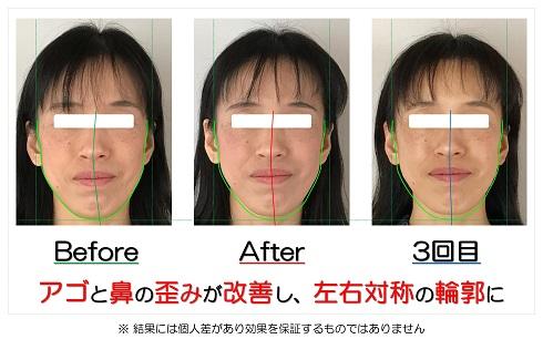 アゴと鼻の歪みが改善し、左右対称の輪郭に
