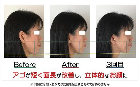 アゴが短く面長が改善し、立体的なお顔