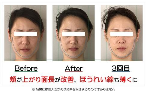 頬が上がり面長が改善、ほうれい線も薄くに