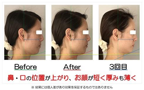 鼻・口の位置が上がり、お顔が短く厚みも薄く
