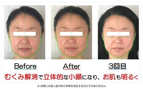 むくみ解消で立体的な小顔になり、お肌も明るく