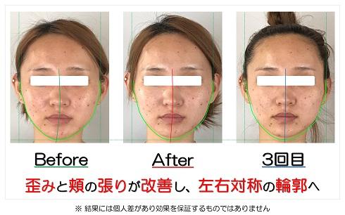 歪みと頬の出っ張りが改善して左右対称の輪郭へ