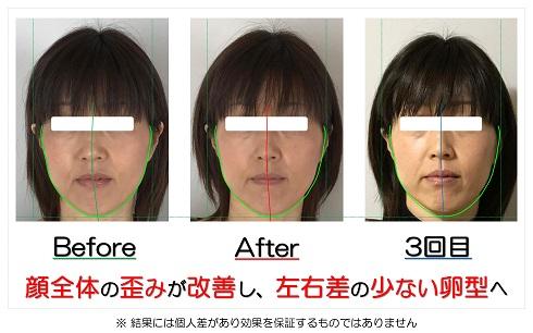 顔全体の歪みが改善し、左右差の少ない卵型へ