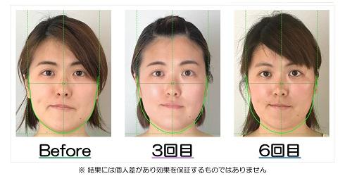 小顔になった変化が視覚的にも実感できるビフォーアフターの比較写真のサービス付き   滋賀県守山市の小顔矯正エステ プリュムレーヴ